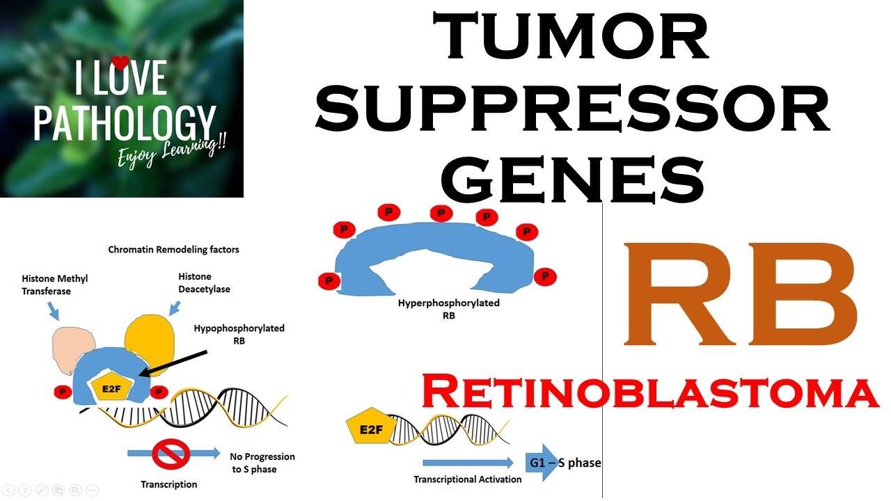 TUMOR SUPPRESSOR GENES Retinoblastoma Gene Knudsons Two Hit Hypothesis