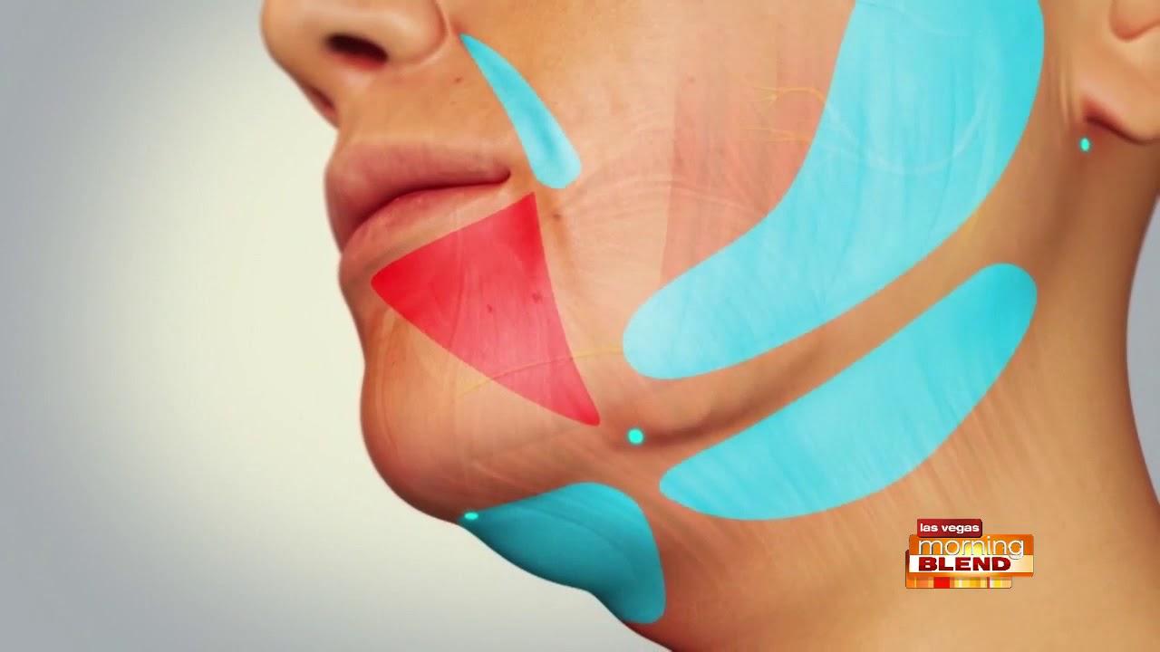 EmbraceRF Cosmetic Facial Procedure