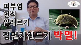 [조이어스박TV]이유없는 가려움 천식 알레르기 집먼지진…