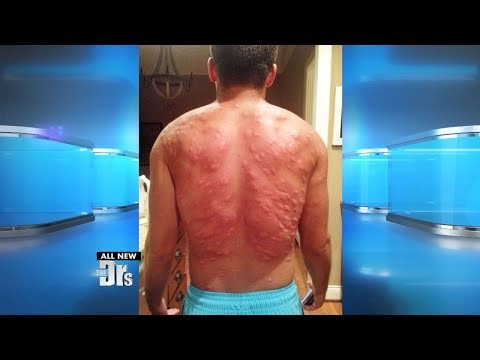 Man Suffers Worst Mosquito Attack Ever