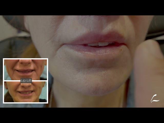 Dallas Facelift, Lip Lift, Earlobe Repair Close-Up
