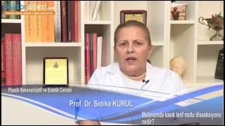 Melenomda Kasık Lenf Nodu Disseksiyonu Nedir?