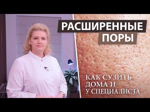 Маска для лица для сужения пор в домашних условиях для жирной кожи