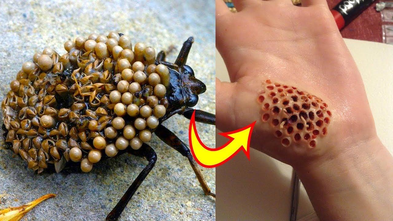 ถ้าโดนแมลงตัวนี้กัดต่อย..มือเราจะเป็นแบบนี้จริงๆหรอน่ากลัว