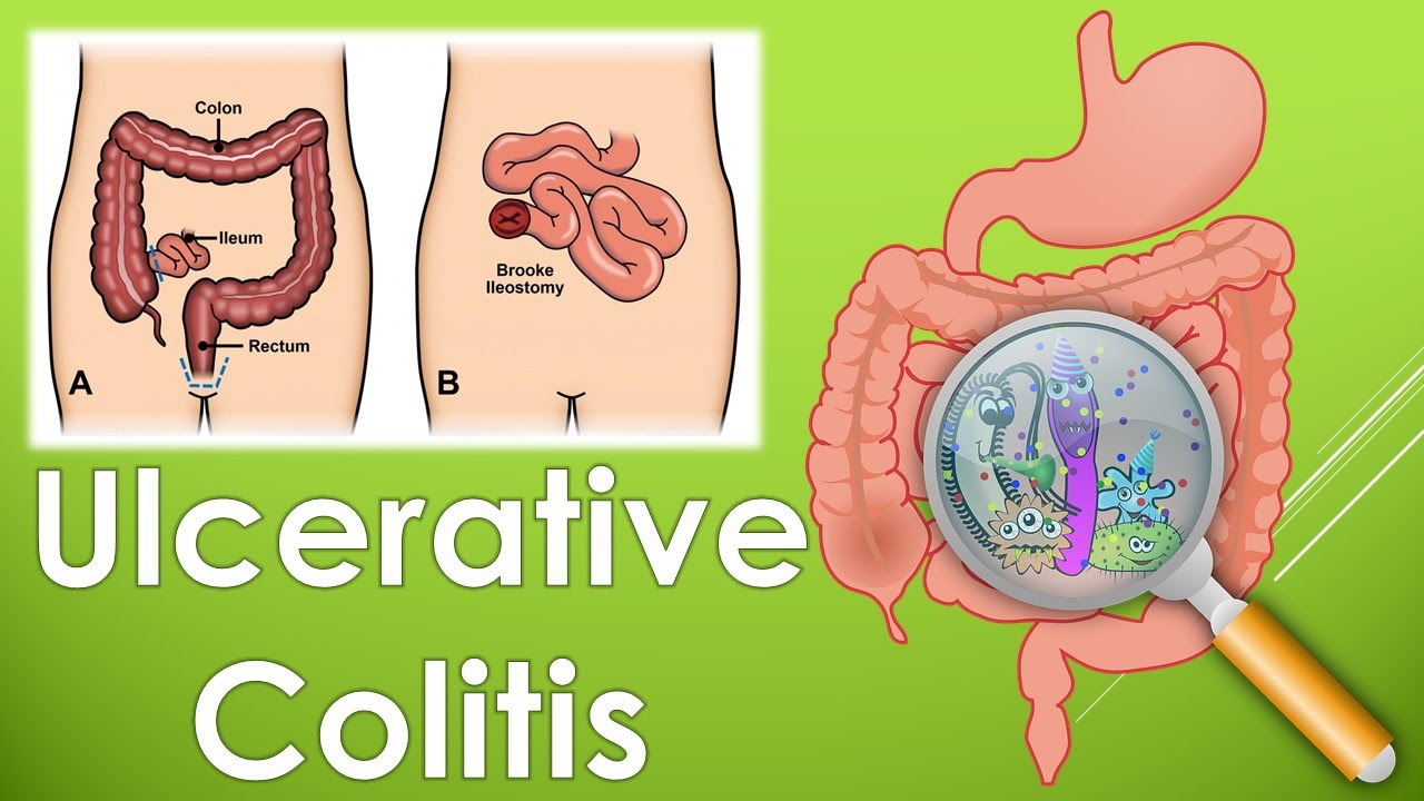 What is colitis 45