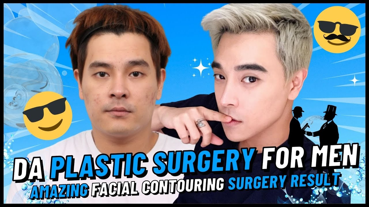 DA Real Story Guy Becomes Handsome After Plastic Surgery!