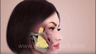 Bichectomy (Fat Removal From The Cheek) - Nefertiti Cheek -   How is it done? Guncel Ozturk, MD YouTube Videos