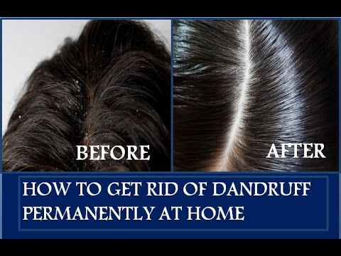 How To Remove Dandruff And Hair Fall Naturally At Home