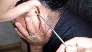 Removing Woman's Deep Earwax Blockage After Using Cotton Buds