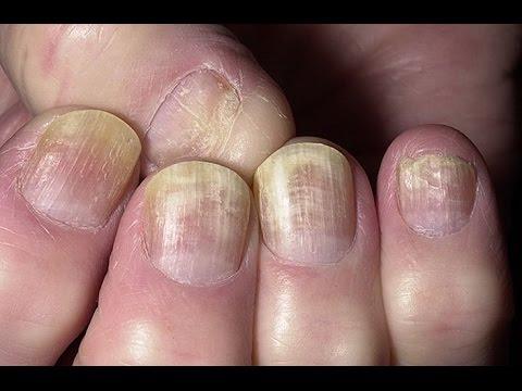 Как вылечить грибок стопы и ногтей домашних условиях уксусом