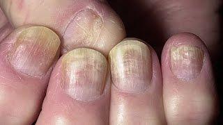 видео Ногти, их строение и заболевания. Форма ногтей и характер человека
