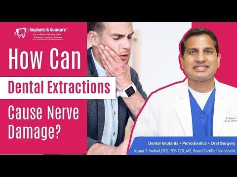 TrigeminalTrigeminalNeuralgiaTrigeminalTrigeminalNeuralgiais a headache condition due to a dysfuncti.