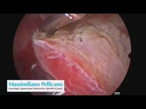 Dr Pellicano - Hysteroscopy - Myomectomy
