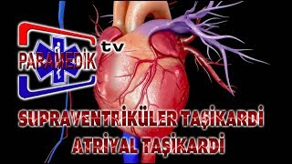 EKG - ATRİYAL ARİTMİLER - Supraventiriküler Taşikardi (SVT) ve Atriyal Taşikardi