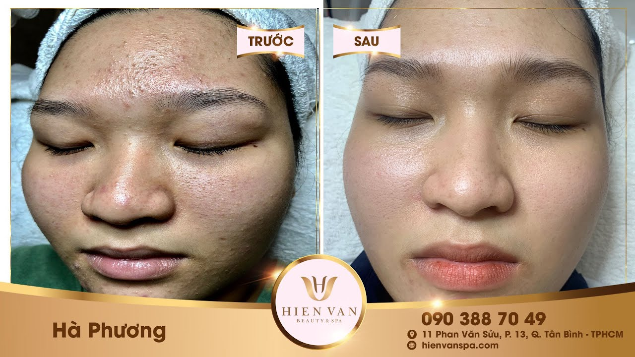 Acne treatment reputation, effective at Hien Van Spa|370I hà phương
