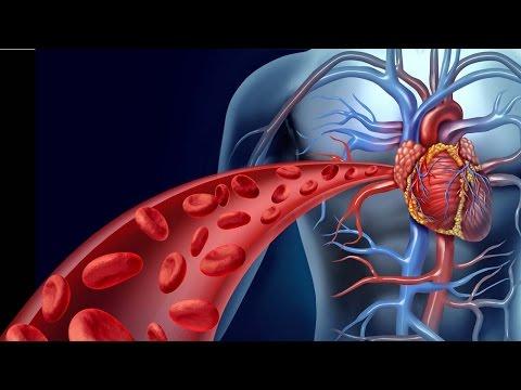 Coronary Artery Bypass Surgery - جراحة الشريان التاجي الالتفافية