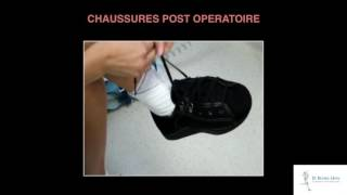 Dr Bruno LEVY - Chaussures orthopédiques hallux valgus