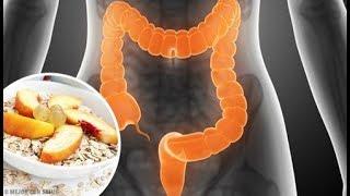 Ce que vous devez manger si vous souffrez du côlon irritable