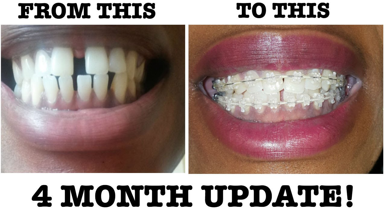 8 My Braces Journey 4 Month Braces Update Why Are
