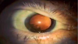 Ministry - Stigmata [HD]