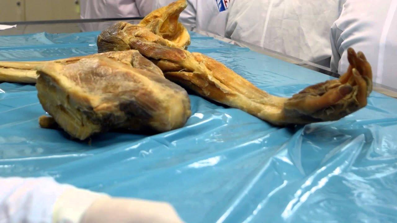 Contemporáneo Laboratorio De Anatomía Humana Modelo - Anatomía de ...