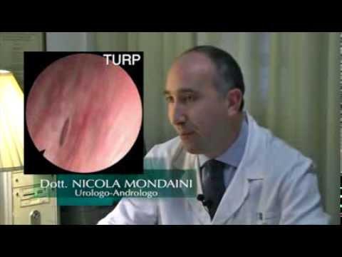prostata video intervento