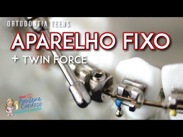 Dra Paulene Cardoso - Aparelho fixo + Twin Force