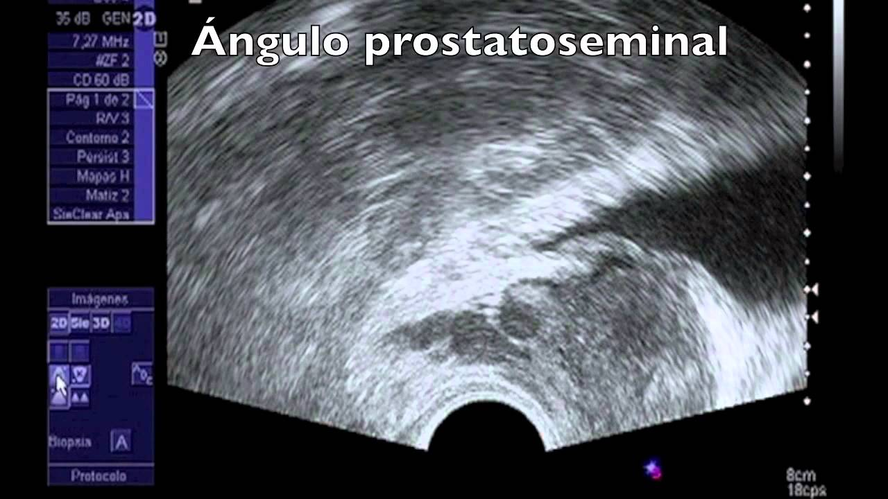 ecografía de próstata trans rectal en 3d 2