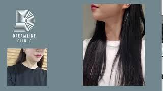 ★★V라인얼굴은 여기서★★드림라인클리닉
