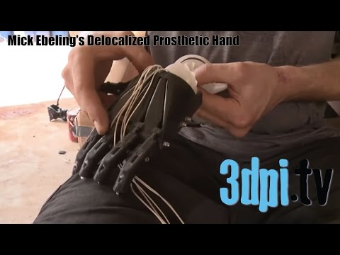 Mick Ebeling's Delocalized 3D Printed Prosthetic Hand