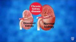 hqdefault - Can Stem Cells Cure Kidney Disease