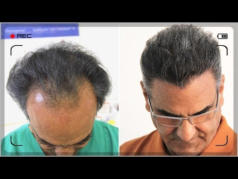 AMAZING TRANSFORMATION, 10.500 GRAFT FUE HAIR TRANSPLANT BEFORE AFTER