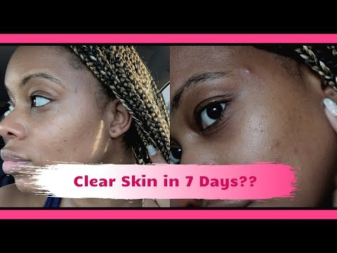 remove-dark-spots-and-scars-in-7-days-|-did-it-work????