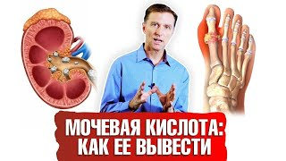 постер к видео Мочевая кислота. Как вывести ее из организма?  ️