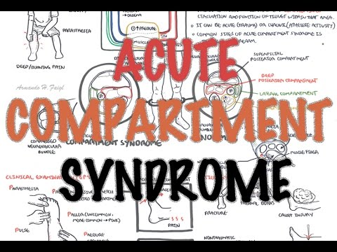 Compartment Syndrome - Overview