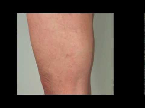 thread-veins-on-the-legs---best-treatment-for-removal