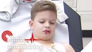 Kinder (8) essen Rattengift! Jetzt droht die innere Verblutung! | Klinik am Südring | SAT.1 TV