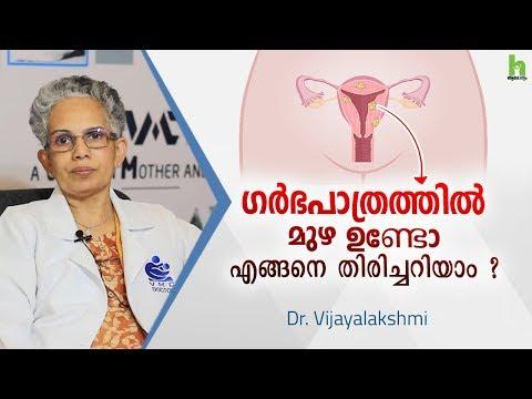 ഗർഭ-പാത്രത്തിൽ-മുഴ-ഉണ്ടോ-?-എങ്ങനെ-തിരിച്ചറിയാം-?-fibroid-malayalam-health-tips-|-arogyam