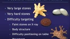 Shockwave Lithotripsy for Kidney Stones