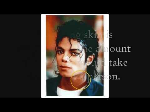 Vitiligo and michael jackson essay
