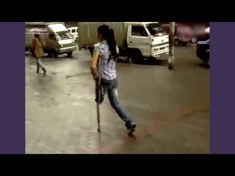 Chinese amputee girl one crutch walking in the rain