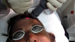 Laser Skin Resurfacing in Los Angeles,Orange County and San Gabriel Valley