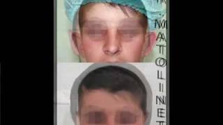 Мой фильм 2.mp4(Отопластика - пластика ушей. Коррекция лопоухости, исправление лопоухости, торчащие уши. Результаты, фото,..., 2012-02-17T22:36:05.000Z)
