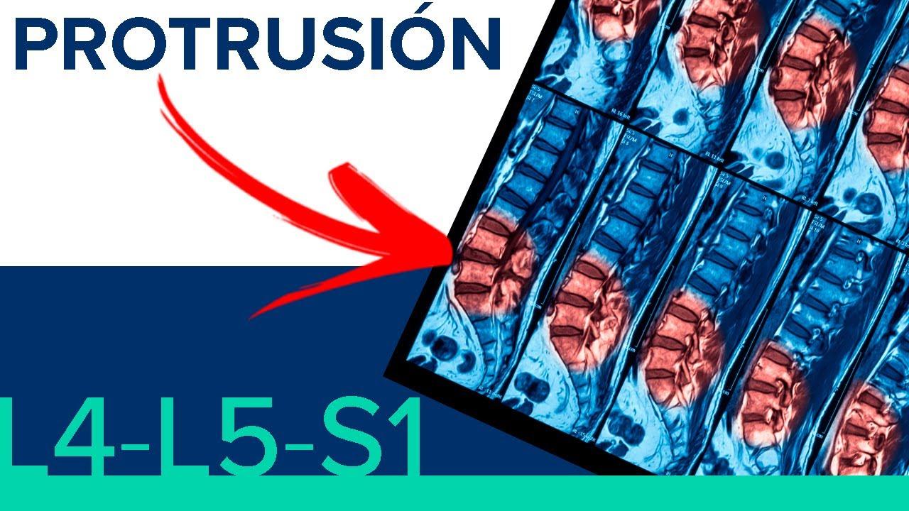Protrusión discal L4-L5-S1
