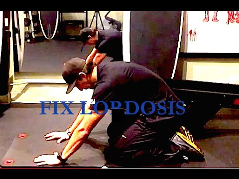 how i fixed hyperlordosis apt and how you can too