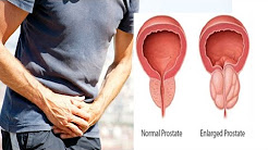 प्रोस्टेट बढ़ने का रामबाण उपचार   Treatment of Prostate Enlargement & Urine Problems