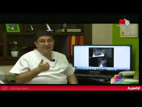 معلومات هامة حول زرع و تطعيم العظم قبل زراعة الأسنان في برنامج استشارات طبية – د. أحمد باسم الحلاق