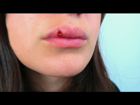 Herpes labiale: 7 rimedi naturali - Macrolibrarsi.it