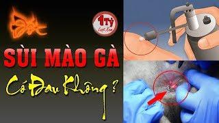 Đốt sùi mào gà có đau không ? Điều trị tận gốc bệnh Sùi Mào Gà bằng thuốc Nam