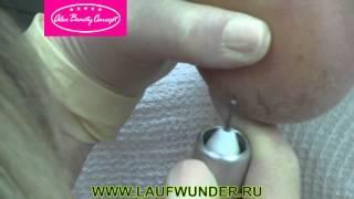 Аппаратная обработка трещин при педикюре